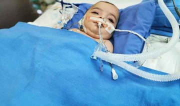 Libyan twins in stable condition 5 days after Riyadh surgery