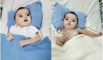 Top Saudi surgeon visits separated conjoined twins