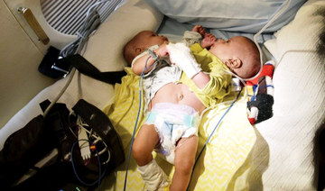 Conjoined Mauritanian twins arrive in Saudi Arabia for separation