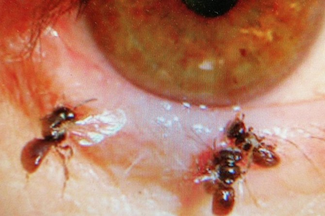 Doctors find bees in Taiwanese woman's eye, feeding on her tears